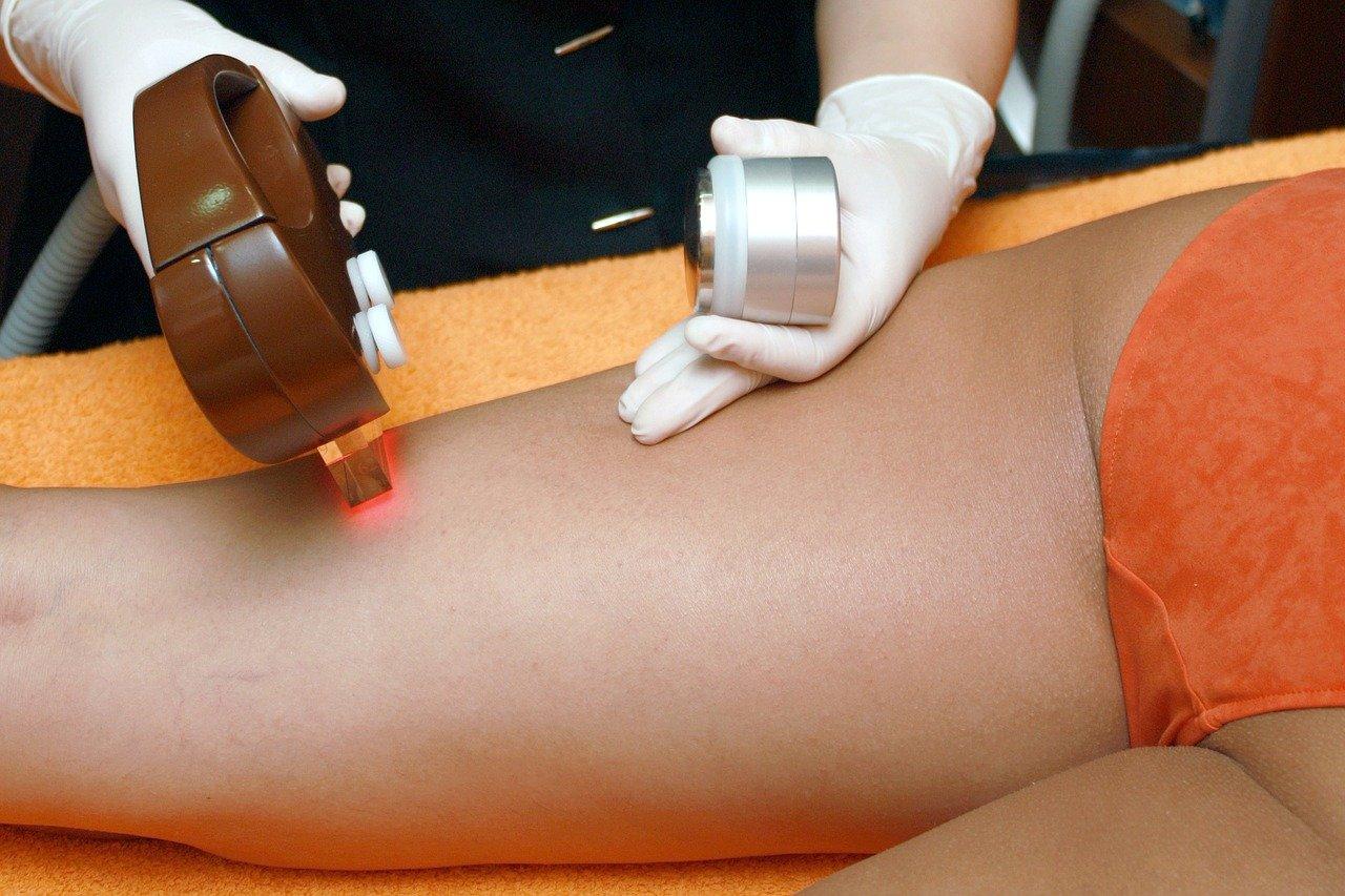 足の医療脱毛の人気おすすめランキング6選 気になる費用や回数などを専門家が解説!【医療脱毛】のサムネイル画像