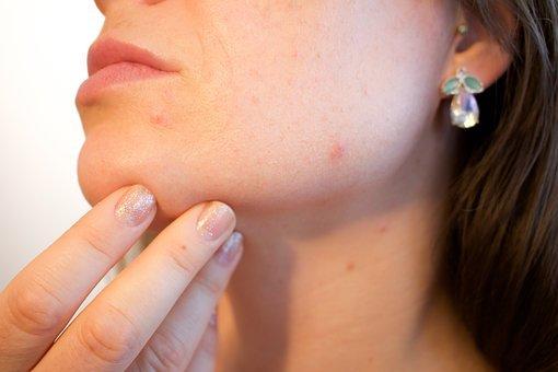 口周りのニキビや肌荒れのケア方法を紹介!人気おすすめ商品ランキング【専門家が解説】のサムネイル画像